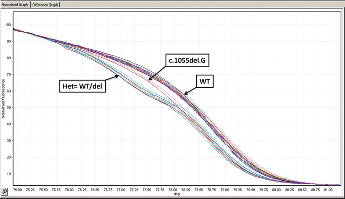 Figure 4: High-resolution melting analysis. Normalized melt curves for c.1055del.G mutation of phenylalanine hydroxylase gene. The melting curves show three different patterns, for wild-type, mutant (c.1055del.G) and heterozygous (WT/del). Differentiating different genotypes of E280K mutation. It shows that the heterozygous is first to melt, followed by the mutant and finally the wild type