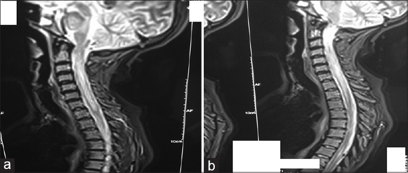 Figure 1: (a) Magnetic resonance imaging in T2 sagittal cervical and thoracolumbar spine sequence showing an abnormal longitudinal signal predominant with lower cervical and less pronounced at the level of the dorsal bone marrow and at the height of D4/D5 with confluent focal cervical and dorsal hyperintensities, medullary hypertrophy, and a poorly limited contrast. It is associated with a probable left optical neuritis. (b) Magnetic resonance imaging
