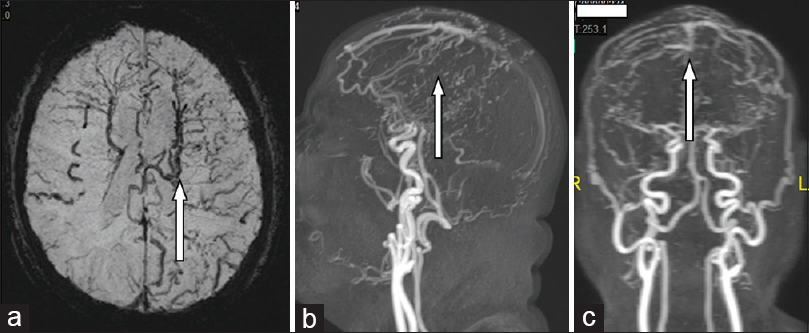 Figure 1: (a-c) Magnetic resonance imaging susceptibility-weighted imaging sequence axial cut (a) showing dark flow void signal of abnormal prominent cerebral cortical perforator, transmedullary and ependymal veins more on the left side. Cranial noncontrast time of the flight magnetic resonance angiography lateral (b) and anteroposterior (c) showing superior sagittal sinus Dural arteriovenous fistula with prominent external carotid meningeal feeding arteries, arteriovenous shunting, and early filling of the anterior third of the superior sagittal sinus